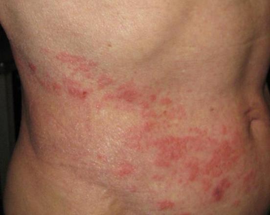 かゆみ 帯状 だけ 疱疹 突然の痛み、赤い湿疹、かゆみ、もしかして帯状疱疹?!帯状疱疹が皮膚に与える影響を解説